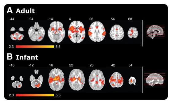 20150423_Babies and pain comparison figure560