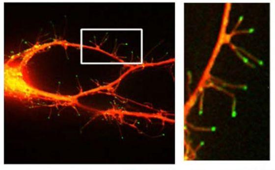 Φθορίζουσα μικροφωτογραφία νευρώνα όπου φαίνονται νηματοπόδια που προεκτείνονται από δενδρίτη (Η εικόνα από Webb Lab/Vanderbilt)