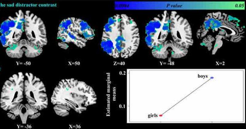 Η κατάθλιψη επηρεάζει διαφορετικά τον εγκέφαλο αρρένων και θηλέων ασθενών