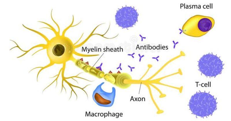 Σκλήρυνση κατά πλάκας: Κρύσταλλοι χοληστερόλης εμποδίζουν την αναγέννηση στο κεντρικό νευρικό σύστημα