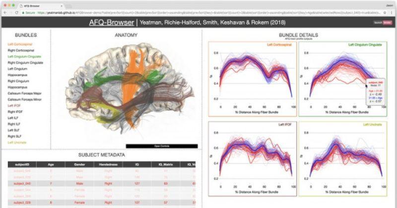 Εκδημοκρατίζοντας την επιστήμη: Ερευνητές κάνουν τα πειράματα της νευροεπιστήμης ευκολότερο να μοιραστούν και να αναπαραχθούν
