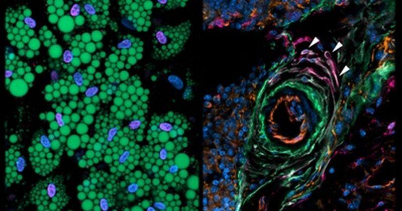 Ελπίδες για τον έλεγχο της παχυσαρκίας: Οι επιστήμονες ανακάλυψαν τα κύτταρα που ελέγχουν το σχηματισμό του λίπους