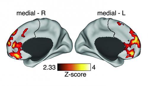 Οι έγχρωμες περιοχές αντιπροσωπεύουν περιοχές με αυξημένη συνδεσιμότητα των εγκεφαλικών κυττάρων σε προμετωπιαίο φλοιό σε ασθενή στον οποίο πρόσφατα είχε διαγνωσθεί σχιζοφρένεια. Credit: Michael Helfenbein