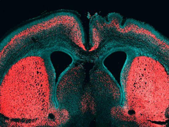 Η εικόνα εμφανίζει ένα εγκεφαλικό φλοιό ενός εμβρύου ποντικού. Οι κυτταρικοί πυρήνες χρωματίζονται μπλε και οι νευρώνες των βαθέων στρωμάτων κόκκινοι. Το ειδικό ανθρώπινο γονίδιο ARHGAP11B ήταν επιλεκτικά εκφρασμένο στο δεξιό μισό του εγκεφάλου, όπου είναι ορατό με την αναδίπλωση της επιφάνειας του νεοφλοιού. Credit: MPI f. Molecular Cell Biology and Genetics