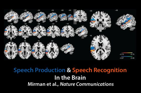 20150416_mirman-brain-map560