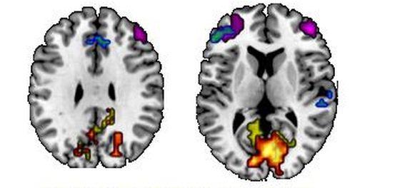 Τα χρώματα δείχνουν τις περιοχές του εγκεφάλου που συνδέονται με τους έσω κραταφικούς λοβούς. Οι περιοχές που είναι χρωματισμένες με μπλε, πράσινο, μωβ είναι αυτές που σχετίζονται με την ανάκληση γεγονότων και οι περιοχές που είναι χρωματισμένες με κόκκινο, παρτοκαλί, κίτρινο είναι αυτές που σχετίζονται με την ανάκληση λεπτομερειών.