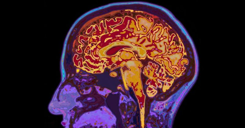 Έρευνα με σάρωση MRI αποκαλύπτει πώς προστατεύει τις μνήμες μας  ο εγκέφαλος