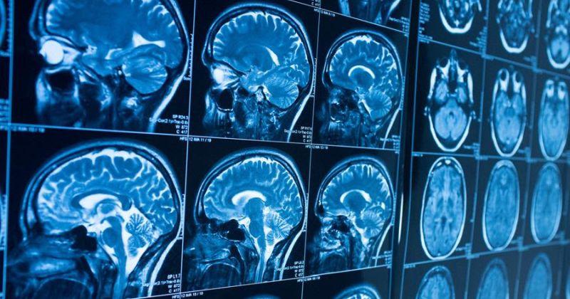 Το τραυματικό στρες στην παιδική ηλικία μπορεί να οδηγήσει σε αλλαγές στον εγκέφαλο κατά την ενηλικίωση – Προς νέες θεραπείες για ψυχικές διαταραχές
